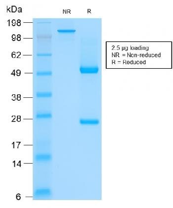 Fig. 2: SDS-PAGE Analysis of Purified CK HMW Mouse Recombinant Monoclonal Antibody (rKRTH/2148). Confirmation of Integrity and Purity of Antibody.