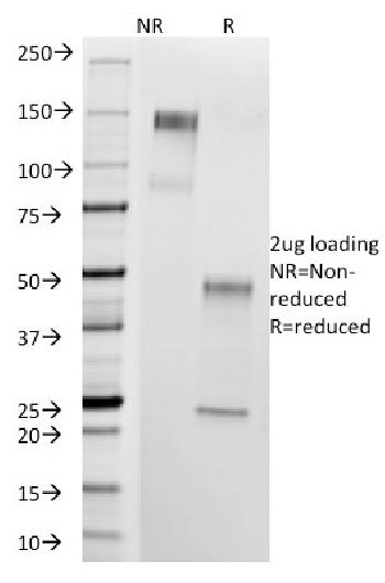 Anti-Thomsen-Friedenreich Antigen / CD176 (Pan Carcinoma Marker) Monoclonal Antibody(Clone: A84-A/F10)