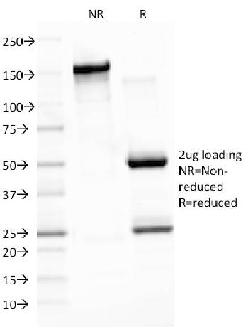 Fig. 1: SDS-PAGE Analysis Purified EBV Mouse Monoclonal Antibody (CS3). Confirmation of Integrity and Purity of Antibody.