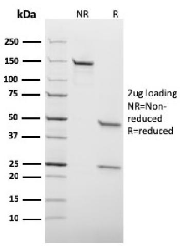 Fig. 2: Formalin-fixed, paraffin-embedded human Hodgkin's Lymphoma stained with EBV Mouse Monoclonal Antibody (CS4).