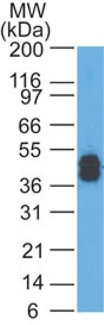 Fig. 2: Western Blot Analysis of A431 cells using Cytokeratin, LMW Mouse Monoclonal Antibody (AE-1).