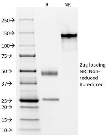 Fig. 3: SDS-PAGE Analysis Purified Cytokeratin, LMW Monoclonal Antibody (AE-1). Confirmation of Purity and Integrity of Antibody.