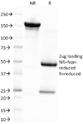 Fig. 1: SDS-PAGE Analysis Purified EBV Mouse Monoclonal Antibody (CS4). Confirmation of Integrity and Purity of Antibody.