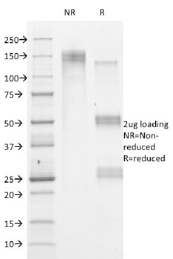 Fig. 2: SDS-PAGE Analysis Purified HSVI Mouse Monoclonal Antibody (HSVI/2095). Confirmation of Purity and Integrity of Antibody.