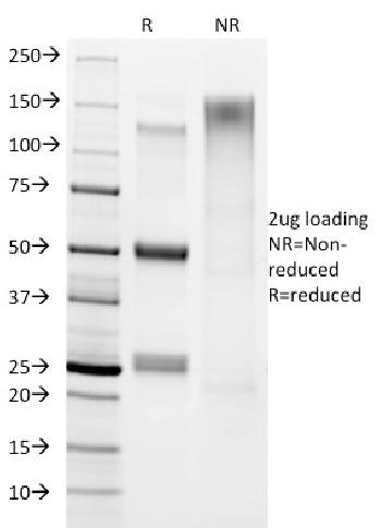 Fig. 1: SDS-PAGE Analysis Purified Helicobacter pylori Mouse Monoclonal Antibody (HP/1336). Confirmation of Integrity and Purity of antibody.