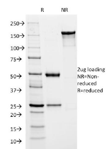 Fig. 1: SDS-PAGE Analysis Purified HSVI Mouse Monoclonal Antibody (HSVI/2045). Confirmation of Integrity and Purity