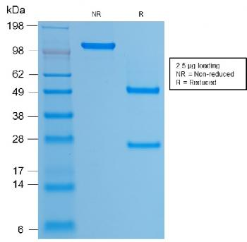 Fig. 2: SDS-PAGE Analysis Purified HPV-16 Mouse Recombinant Monoclonal Antibody (rHPV16L1/1058). Confirmation of Purity and Integrity of Antibody.