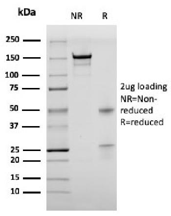 Fig. 1: SDS-PAGE Analysis of Purified BrdU Mouse Recombinant Monoclonal Antibody (rBRD469). Confirmation of Purity and Integrity of Antibody.