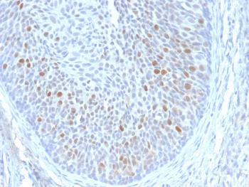 Fig. 1: Formalin-fixed, paraffin-embedded human Cervix stained with HPV-18 Mouse Monoclonal Antibody (HPV16 E1/E4).