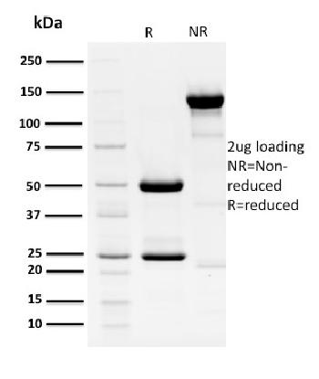 Fig. 3: SDS-PAGE Analysis Purified HPV-18 Mouse Monoclonal Antibody (HPV16 E1/E4). Confirmation of Purity and Integrity of Antibody.