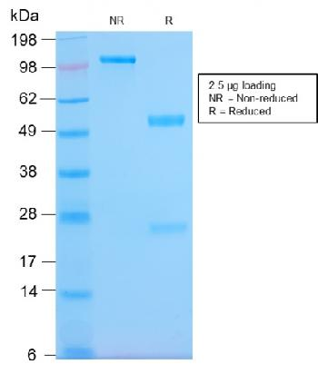 Fig. 6: SDS-PAGE Analysis Purified HLA-Pan Rabbit Recombinant Monoclonal (HLA-Pan/2967R). Confirmation of Purity and Integrity of Antibody.