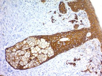 Fig. 1: Formalin-fixed, paraffin-embedded human Skin stained with Cytokeratin, HMW Rabbit Recombinant Monoclonal Antibody (KRTH/1576R).