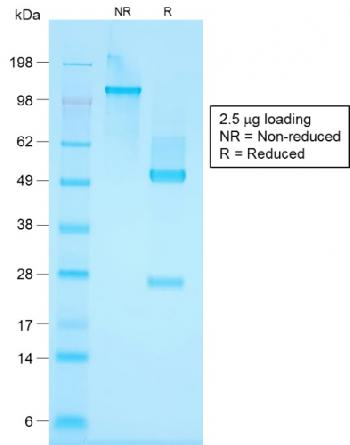 Fig. 3: SDS-PAGE Analysis Purified Cytokeratin, HMW Rabbit Recombinant Monoclonal Antibody (KRTH/1576R).