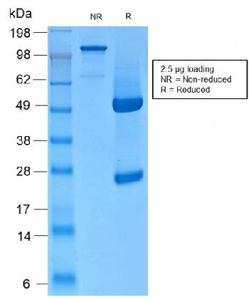 Fig. 2: SDS-PAGE Analysis of Purified CK HMW Rabbit Recombinant Monoclonal Antibody (KRTH/2147R). Confirmation of Integrity and Purity of Antibody.