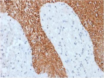 Fig. 1: Formalin-fixed, paraffin-embedded human Skin stained with Multi-Cytokeratin Recombinant Rabbit Monoclonal Antibody (KRT/1877R).