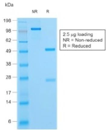 Fig. 2: SDS-PAGE Analysis Purified HSV1 Rabbit Polyclonal Antibody Confirmation of Purity and Integrity of Antibody.