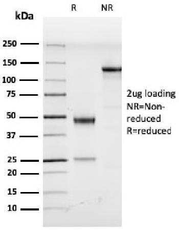 Fig. 1: SDS-PAGE Analysis Purified HHV8 Rat Monoclonal Antibody (LN53). Confirmation of Purity and Integrity of Antibody.