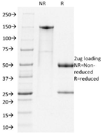 Fig. 1: SDS-PAGE Analysis Purified PD1 Rat Monoclonal Antibody (RMP-1-14). Confirmation of Integrity and Purity of Antibody.