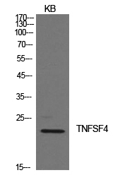 Figure-3:Western Blot (WB) analysis of KB cells using Ox40L Polyclonal antibody.