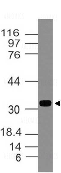 Anti-TIMP1 Antibody| 11-7586